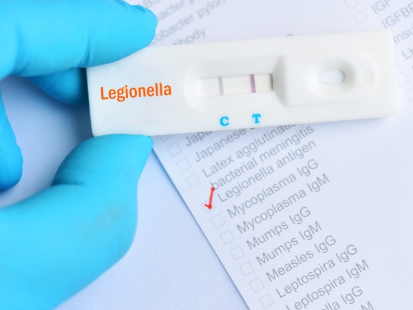 15-point plan for reducing the risk of Legionella